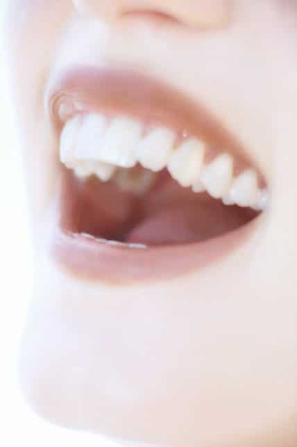 Four Reasons to Replace Missing Teeth
