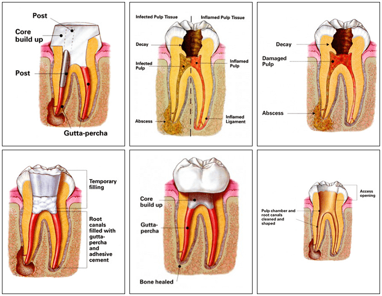 Root Canals - Endodontic Treatment