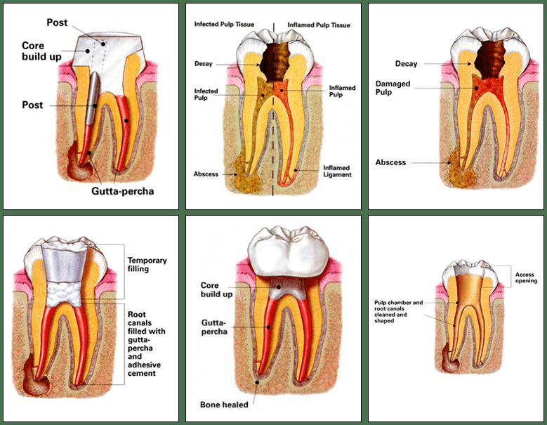 Root Canals - Endodontic Treatment